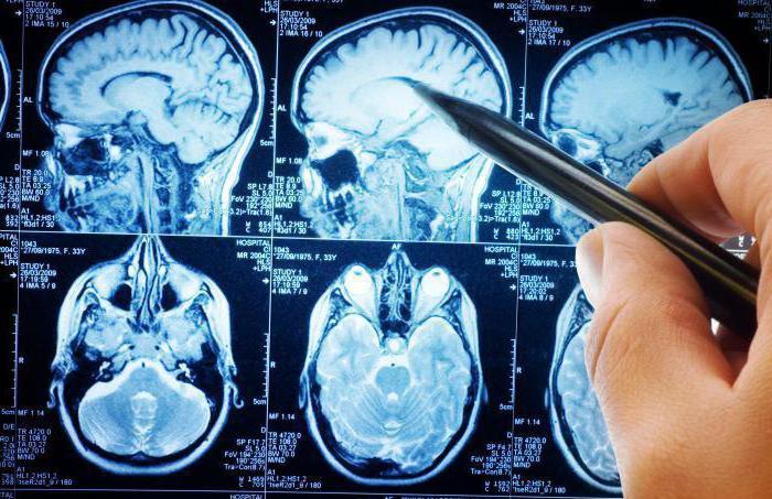 التهاب الدماغ الياباني